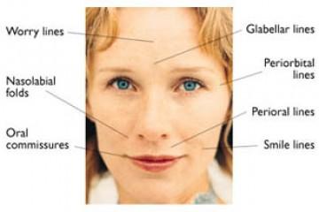 תראי שוב צעירה עם ניתוח מתיחת הפנים